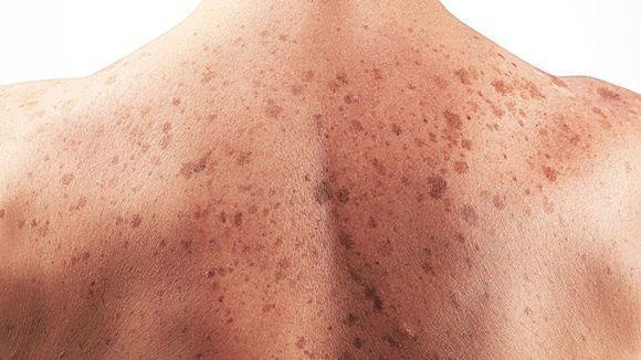 cuba registers new skin cancer medicine.jpg